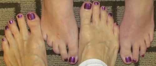 Matching toenails